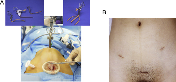 A new concept of minimally invasive laparoscopic surgery utilizing the  vaginal route to prevent iatrogenic spillage of dermoid cysts: The bathtub  method - ScienceDirect