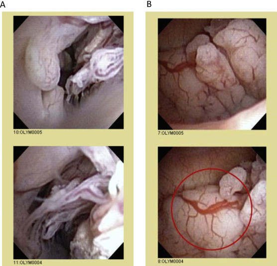 endometrial cancer after hysterectomy)
