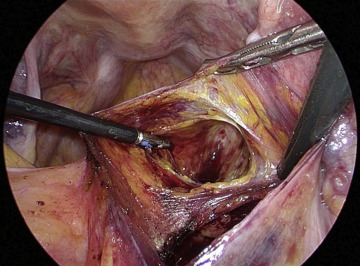 How To Reduce The Operative Time Of Laparoscopic Sacrocolpopexy
