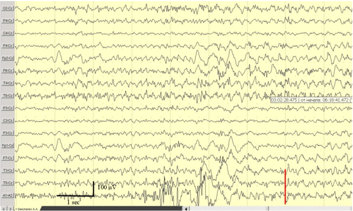 Déjà vu phenomenon-related EEG pattern  Case report