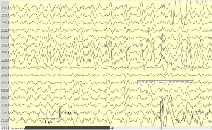 Déjà vu phenomenon-related EEG pattern  Case report