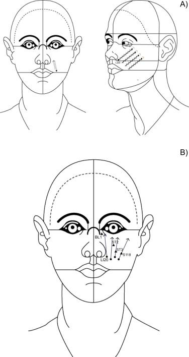 Effect of thread embedding acupuncture for facial wrinkles