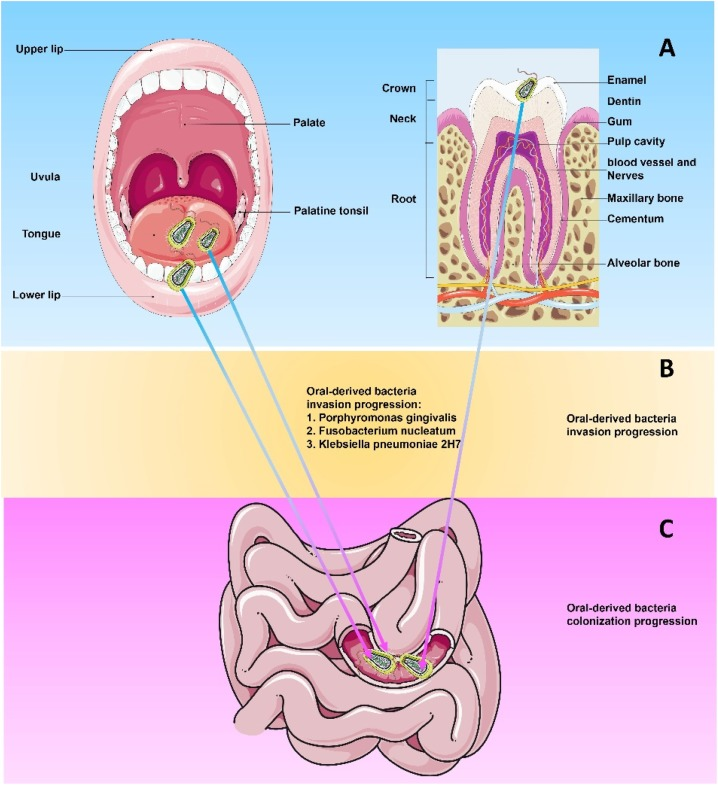 gut dysbiosis xylitol peritoneal cancer recurrence survival