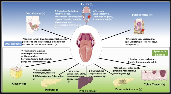 Oral Microbiota A New View Of Body Health Sciencedirect