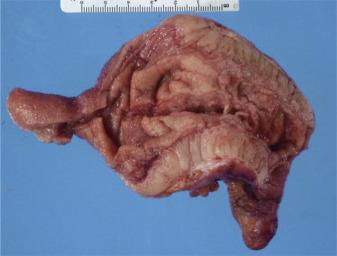 neurofibroma pierderea în greutate