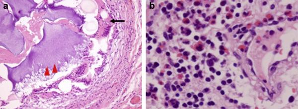 Deterioration of autoimmune condition associated with