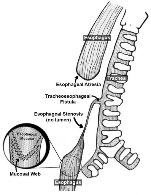 Esophageal Atresia With Tracheoesophageal Fistula A Rare Variant