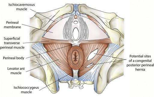Bilateral Congenital Perineal Hernias Spontaneous Resolution