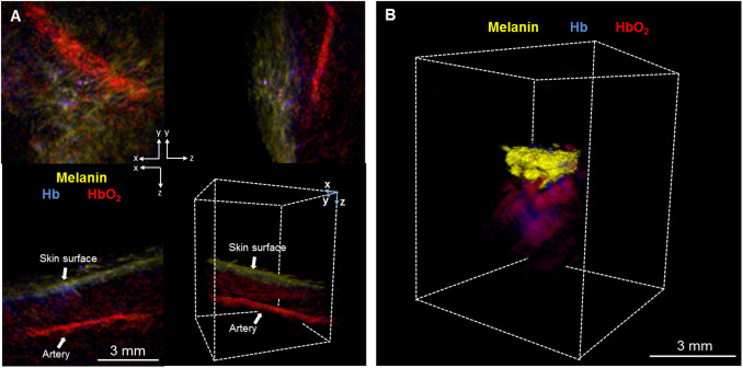 Noninvasive real-time characterization of non-melanoma skin