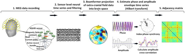 Neonatal brain resting-state functional connectivity imaging
