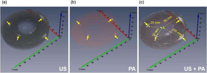 Miniaturized Phased-Array Ultrasound and Photoacoustic