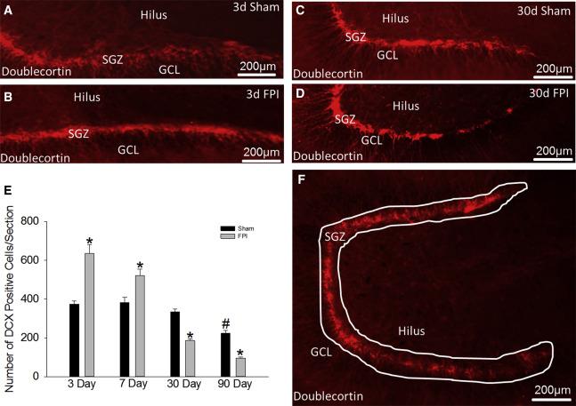 Enhanced Dentate Neurogenesis after Brain Injury Undermines