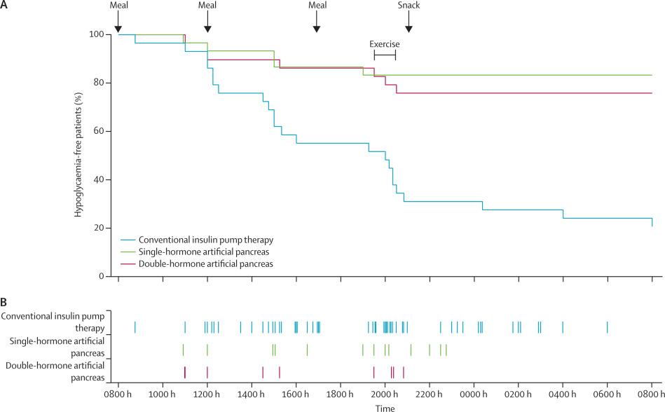 Comparison Of Dual Hormone Artificial Pancreas Single Hormone