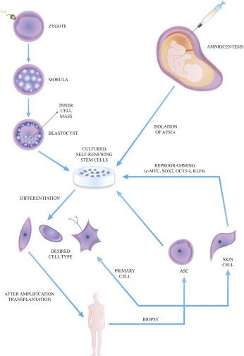 Regenerative medicine: Historical roots and potential