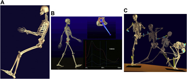 Virtual Interactive Musculoskeletal System (VIMS) in