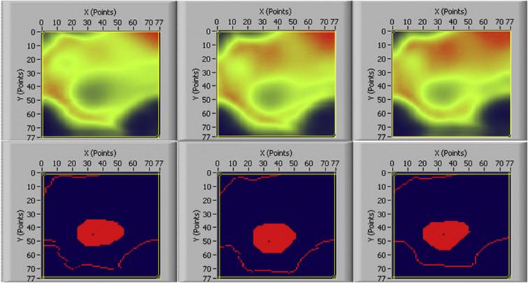 Quantitative ultrasound imaging monitoring progressive
