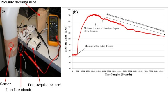 Calibration of sensors for reliable radio telemetry in a
