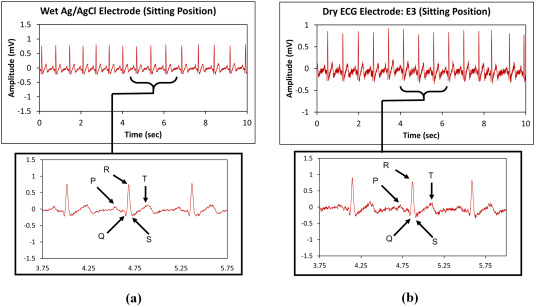 Development of printed and flexible dry ECG electrodes - ScienceDirect