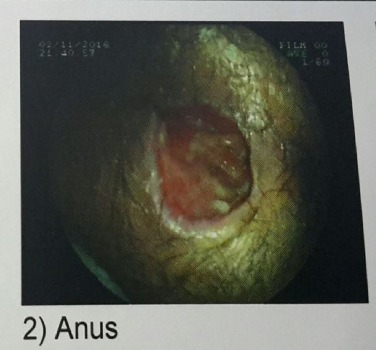 Lesions to the anus