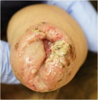 A férfi húgyivarrendszer szervei, Streptococcus penis