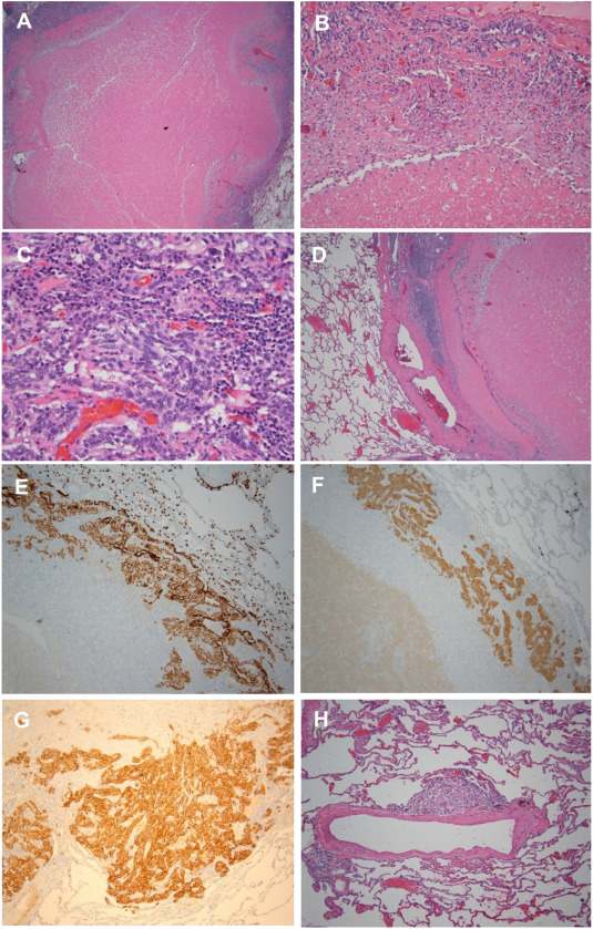 Infarcted neuroendocrine tumor following endobronchial