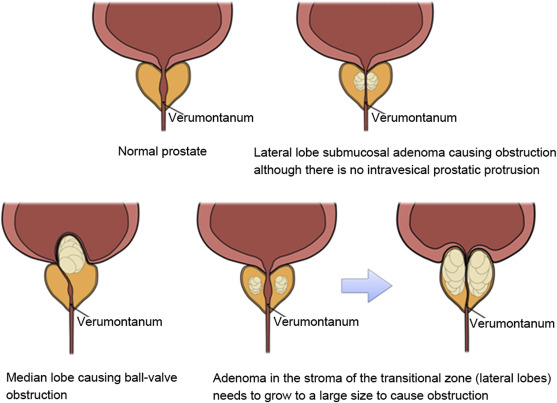Cost of illness of medically treated benign prostatic hyperplasia in Hungary