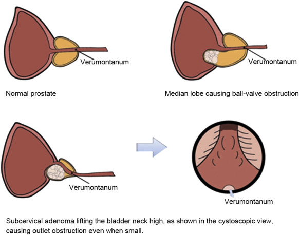 Diagram Of Prostate Lobes Web About Wiring Diagram