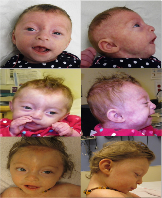 Alg9 Cdg New Clinical Case And Review Of The Literature
