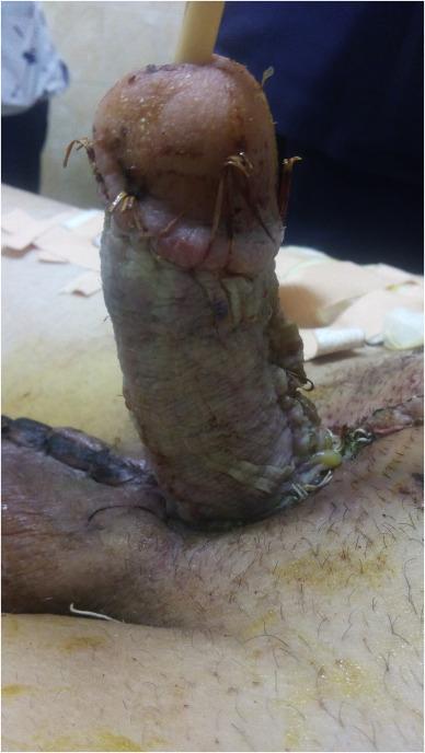 Split Penis
