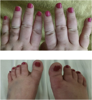 Exogenous Cushing's syndrome secondary to intermittent high