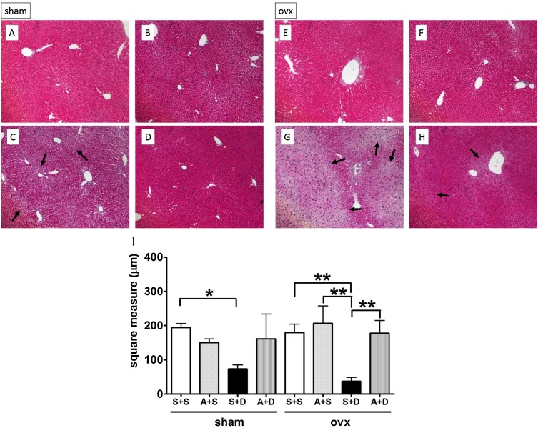 Apocynin reduced doxycycline-induced acute liver injury in