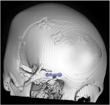 Removal of symptomatic craniofacial titanium hardware