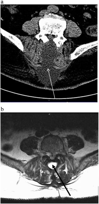 Treatment of postoperative recurrent cerebrospinal fluid