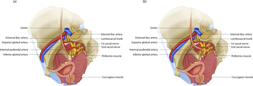 Ureterosciatic Hernia An Up To Date Overview Of Evaluation And