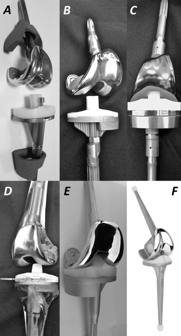 Constrained condylar knee systems: A review of five commonly