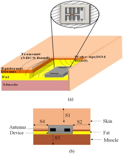 Microstrip Antenna For Biomedical Applications