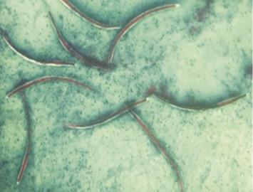 Hatékony féregtabletták áttekintése Les parazites de l estomac, Strongyloidosis mrs