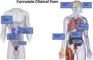 Curcumin An Age Old Anti Inflammatory And Anti Neoplastic Agent Sciencedirect