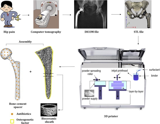 Constructing a 3D-printable, bioceramic sheathed articular spacer