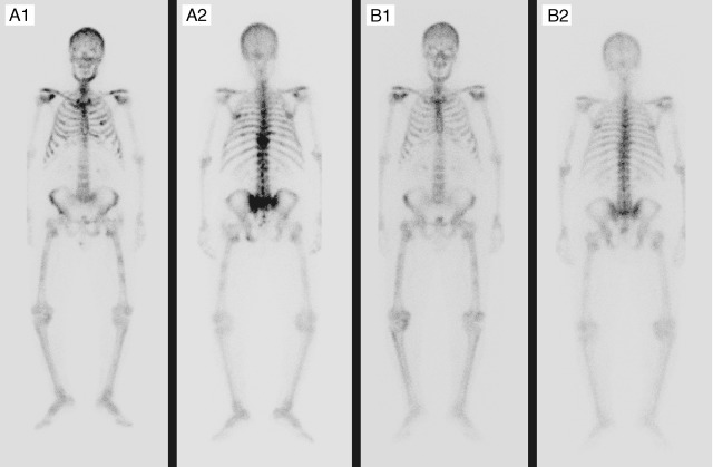 tumor de próstata con un solo objetivo metasasa forones