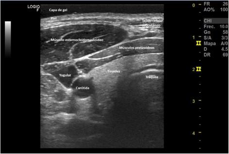 Tratamentul artritei dieta de nutriție a durerii articulare