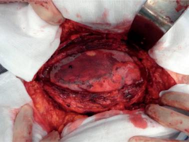 Dehiscencia De Herida Quirurgica Pdf