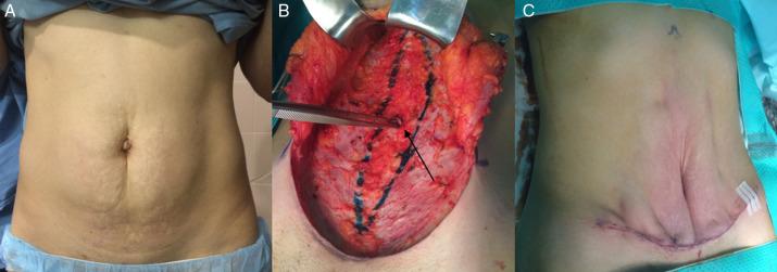 Abdominoplastia y reparación de hernia incisional: lo que un ...