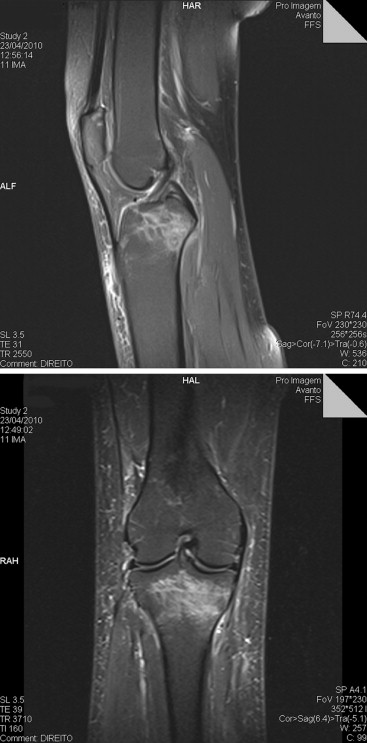Running stress fracture tibial plateau Diagnosis of
