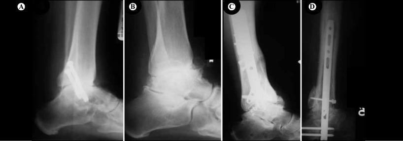 artrita articulației sub talus