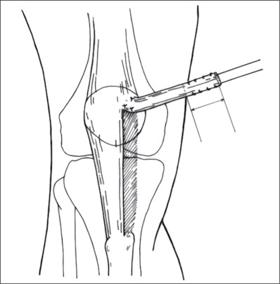 Randomized Prospective Study On Traumatic Patellar Dislocation