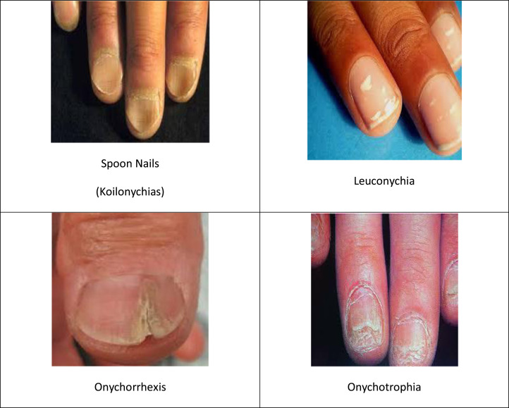 Drug delivery through nails: Present and future - ScienceDirect