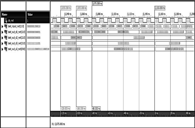 FPGA-based electrocardiography (ECG) signal analysis system