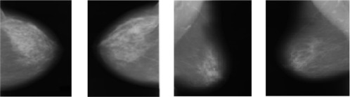 Benign And Malignant Breast Cancer Segmentation Using Optimized