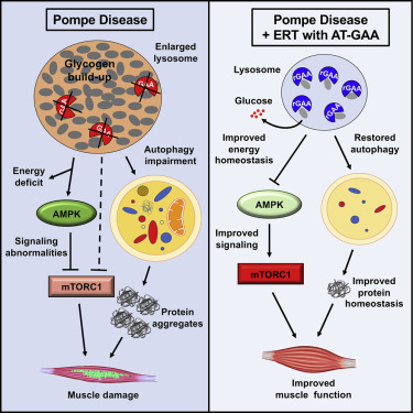 Enzyme Replacement Therapy Can Reverse Pathogenic Cascade in Pompe Disease  - ScienceDirect